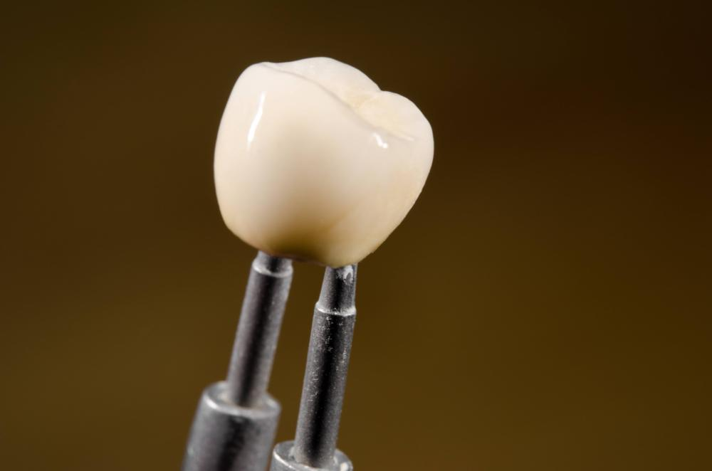 dental implants in stapleton