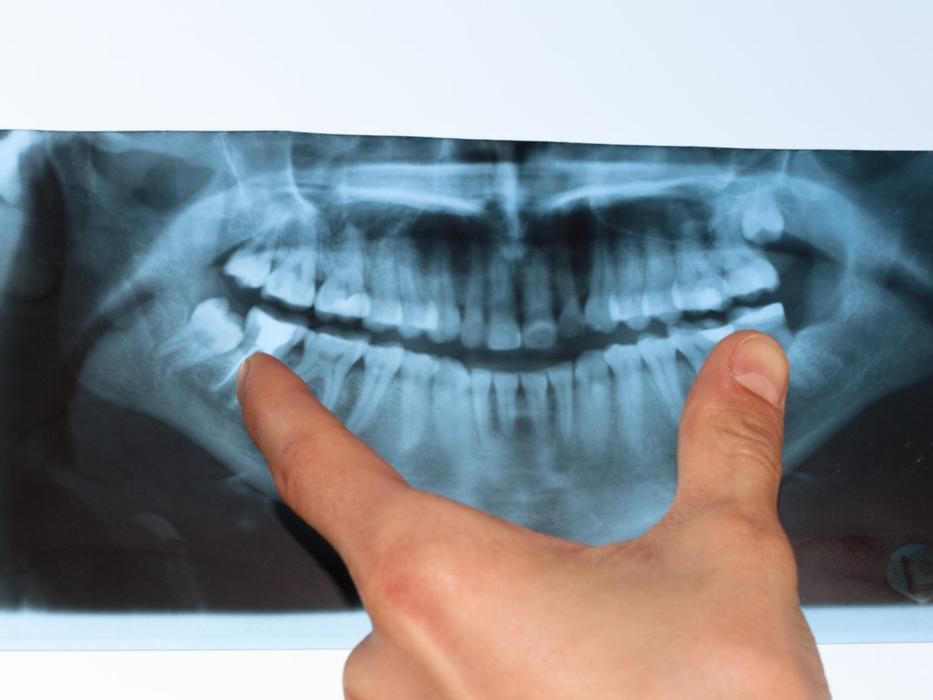 Dental Digital X-Rays | Dentist Denver CO | Dr. Taylor